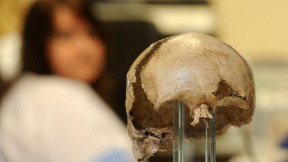 Táborská nemocnice vytvořila vloni pomocí počítačové tomografie prostorový snímek ostatků lebky Jana Žižky z Trocnova. (ilustr. foto)