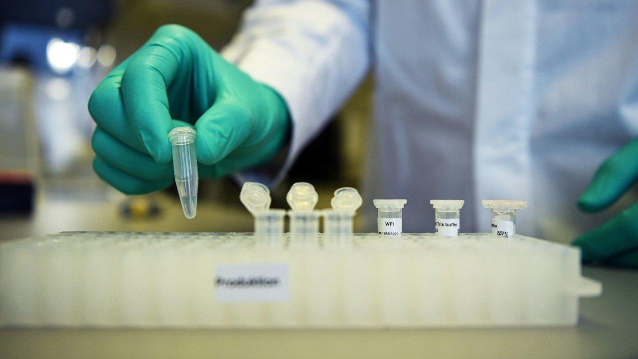 Pacienti, kteří dostávali dávky Aviganu, měli rychleji negativní výsledky testů na SARS-CoV-2 a zlepšovaly se u nich symptomy spojené se zápalem plic. - Ilustrační foto.