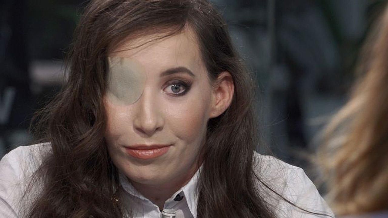 Narodila se bez tváře: Potřebuji poslední operaci, lékaři říkali, že se nedožiju roku