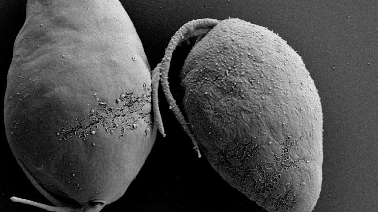 Čeští badatelé se ponořili do hlubin oceánů za diplonemidy. Mořské prvoky zatím nikdo neprozkoumal