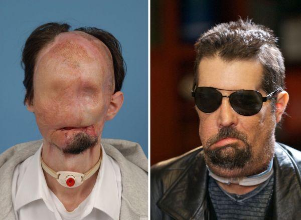 Dallas Wiens před a po operaci