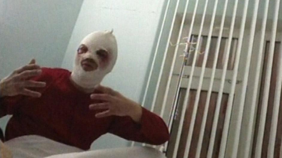 Sergej Filin se bude zotavovat nejméně půl roku, zatím vidí na jedno oko.