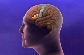 Namísto díry v hlavě speciální polštářek. Tlak uvnitř lebky půjde měřit jinak