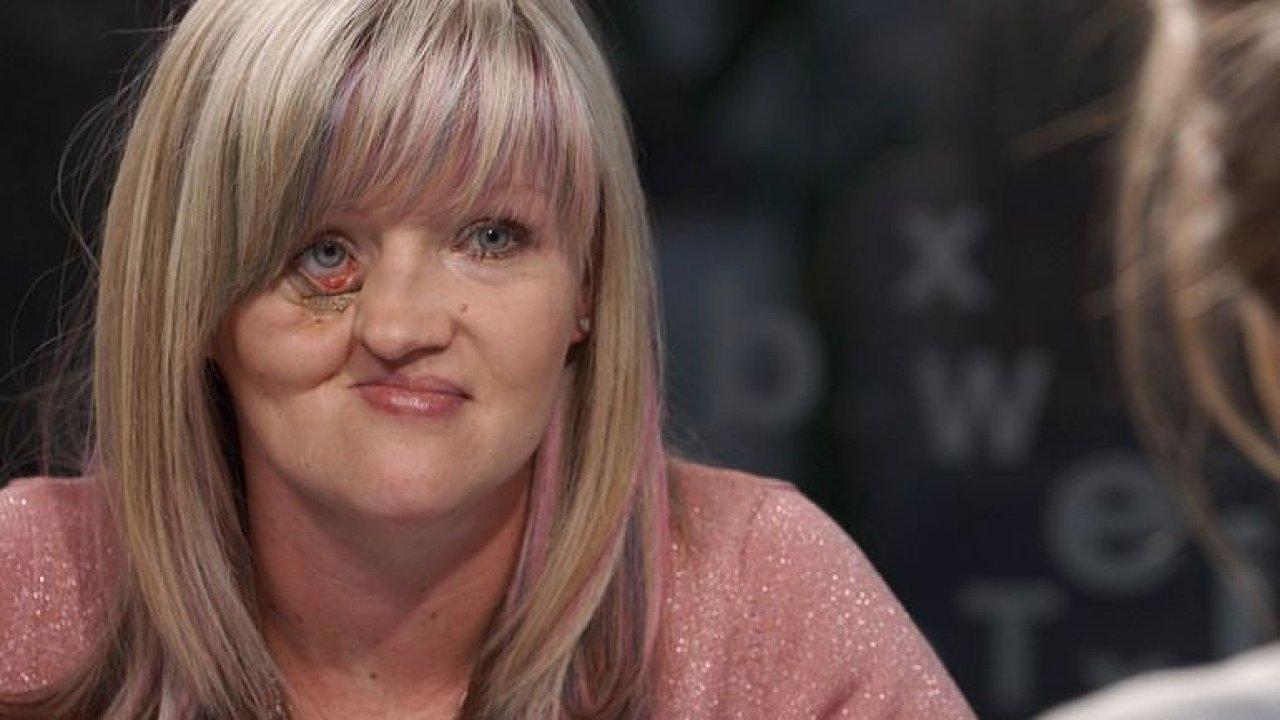 Už nemůžu dlouho čekat, říká žena, které pojišťovna nechce zaplatit operaci obličeje.