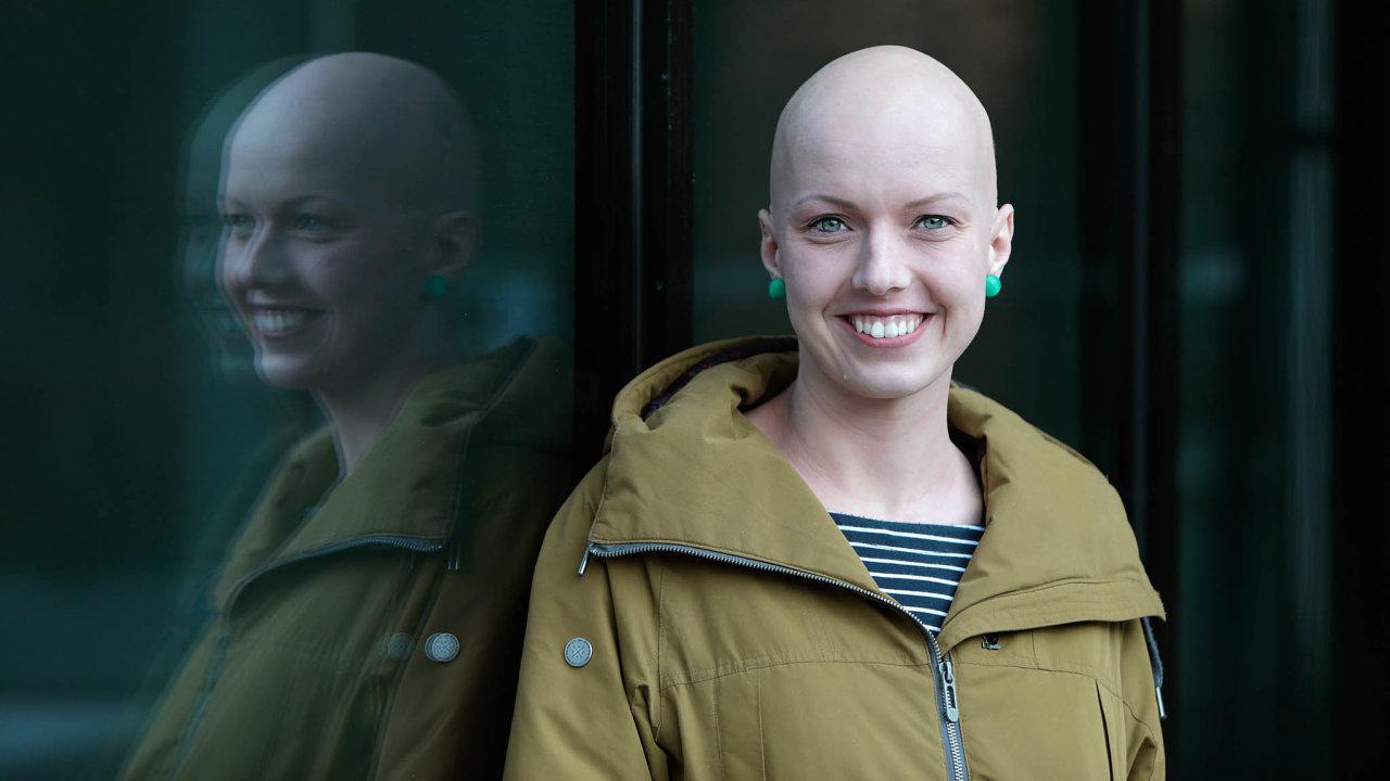 """Tereza Drahoňovská vyzkoušela vboji salopecií ledacos: vitaminy, kortikoidy, fototerapii... Vjedné chvíli si ale řekla dost arozhodla se """"prostě přijmout sama sebe takovou, jaká jsem""""."""