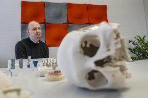 Success Story: Implantáty firmy Lasak zachraňují lidem zdraví i úsměvy