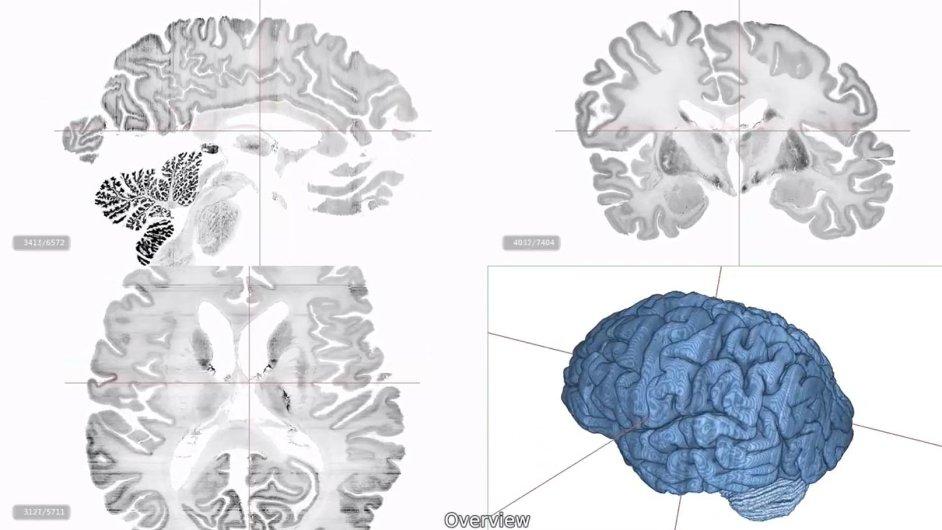 Digitální 3D model lidského mozku