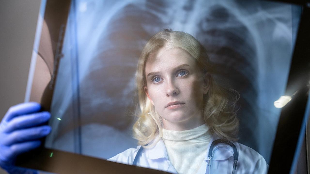 Plicní embolie, krevní sraženiny po prodělané nemoci Covid-19