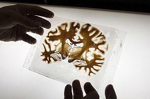 Čeští vědci našli cestu k diagnóze a možná i léčbě Alzheimerovy nemoci
