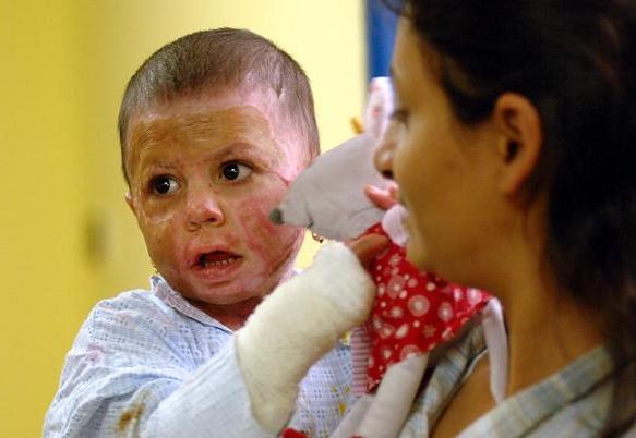 Dvouletá Natálka opustila nemocnici