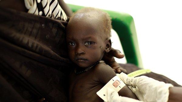 Podvyživená Nyakuor získala díky pomoci dárců terapeutickou výživu.