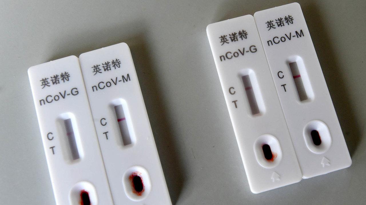 Co nejvyšší počet testů je podle Světové zdravotnické organizace zásadní pro zvládnutí epidemie.