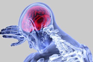 Mozek, mozková příhoda, ilustrace