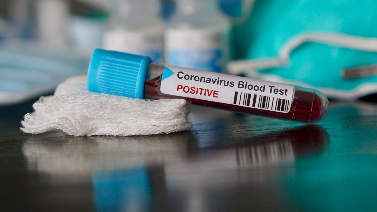 K prvnímu úmrtí na koronavirus mimo Čínu došlo na Filipínách.
