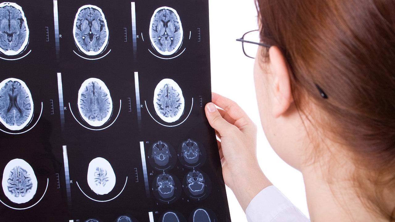 Cévní mozková mrtvice. Ilustrační foto