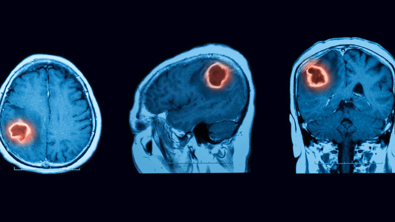 Biočip porovnává lidskou RNA se syntetickými markery aje schopen odhalit například projevy roztroušené sklerózy nebo stav vedoucí kakutní mozkové mrtvici (nasnímku).