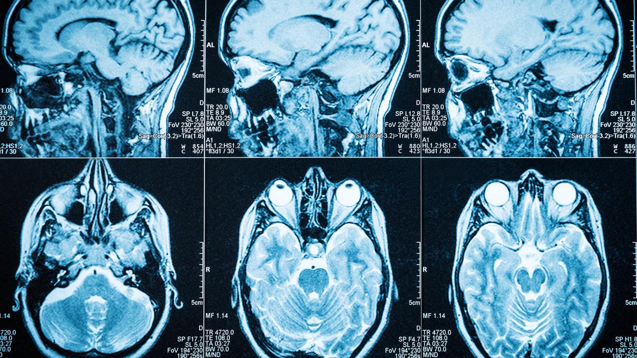 Lidský mozek má pro případy, kdy jeho část chybí, připravenou strategii: neuroplasticitu. Nervové obvody nejsou jednou provždy hotové, ale dokážou se přizpůsobovat novým okolnostem.