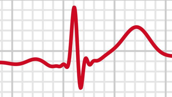 Miloš Čermák: Byl jsem asi první, komu v Česku hodinky natočily EKG. S mým kardiologem jsme o tom napsali článek