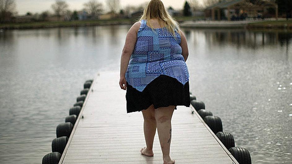 Obezita statisticky více postihuje ženy a jsou s ní spojena velká zdravotní rizika - Ilustrační foto.