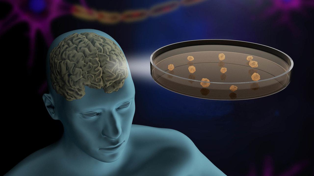 Vsoučasnosti sevývoj technologie organoidů soustřeďuje především na3D modely tkání nervové soustavy, včetně mozku.