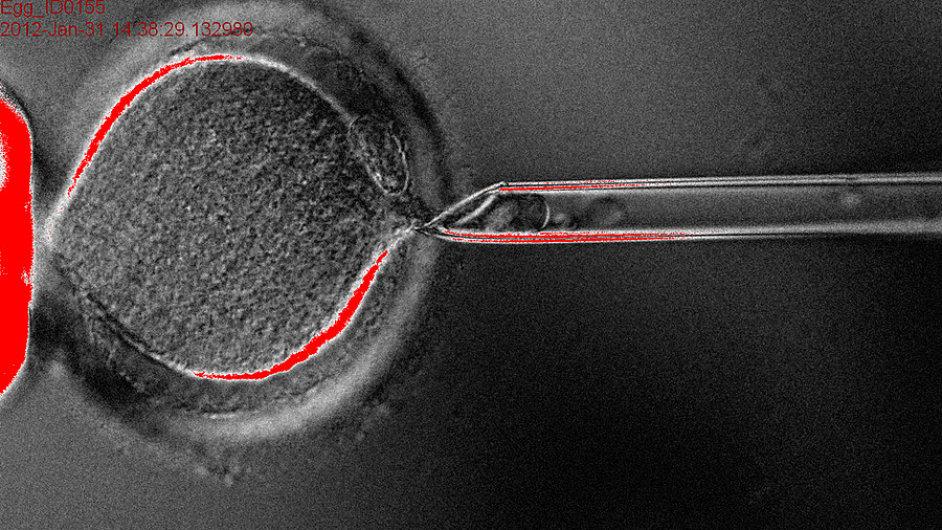 Léčebné klonování začíná: z lidského vajíčka je odstraněna jeho vlastní dědičná informace. Bude nahrazena pacientovou DNA. Foto: Cell, Tachibana et al.