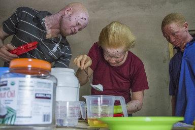 Skupina afrických albínů vyrábí opalovací krém podle české receptury. Tu vymysleli čeští vědci tak, aby obsahovala levné výrobní suroviny azvládli ji ilaici.